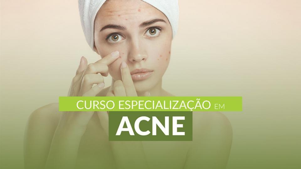 Curso Especialização em Acne